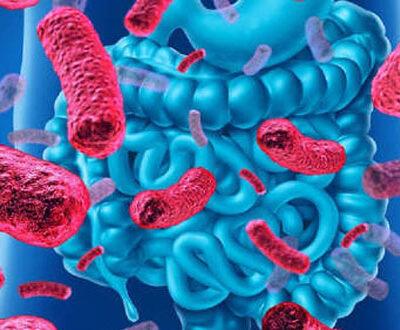 El síndrome de intestino irritable, ¿qué alternativas de tratamiento hay disponibles?