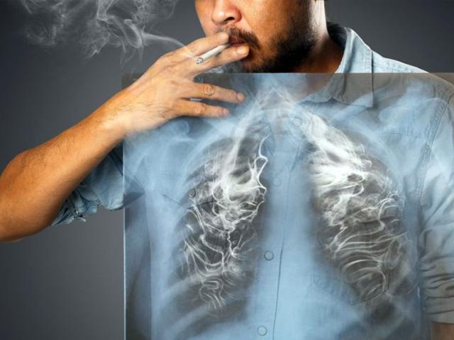 Tabaquismo e Hígado graso